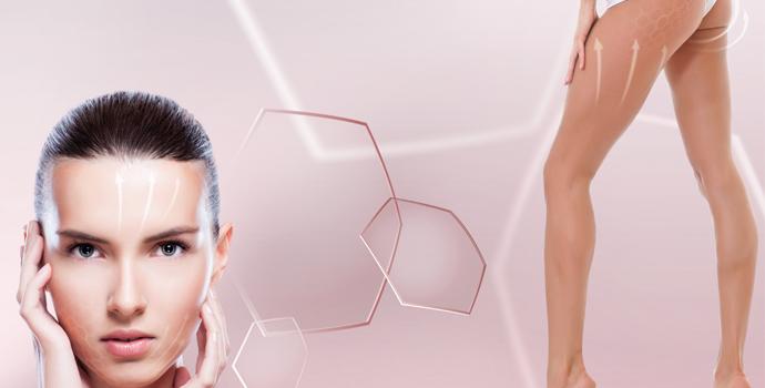 KRF behandeling - Carola Nails and Beauty