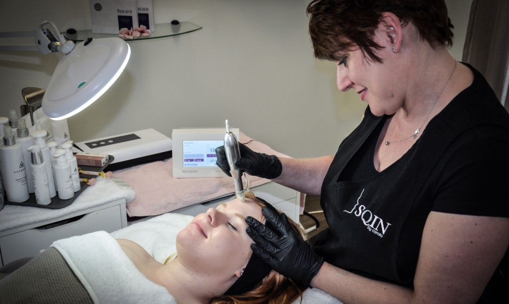 reviderm skin-needler - SQIN by Carola