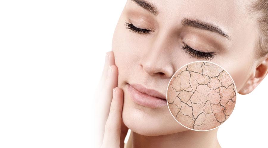 droge huid behandelingen - SQIN in Elst